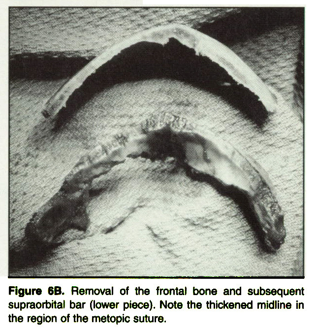 Figure 6B. Removal of the frontal bone and subsequent supraorbital bar (lower piece). Note the thickened midline in the region of the metopic suture.