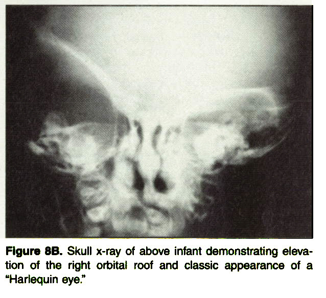 "Figure 8B. Skull x-ray of above infant demonstrating elevation of the right orbital roof and classic appearance of a ""Harlequin eye."""
