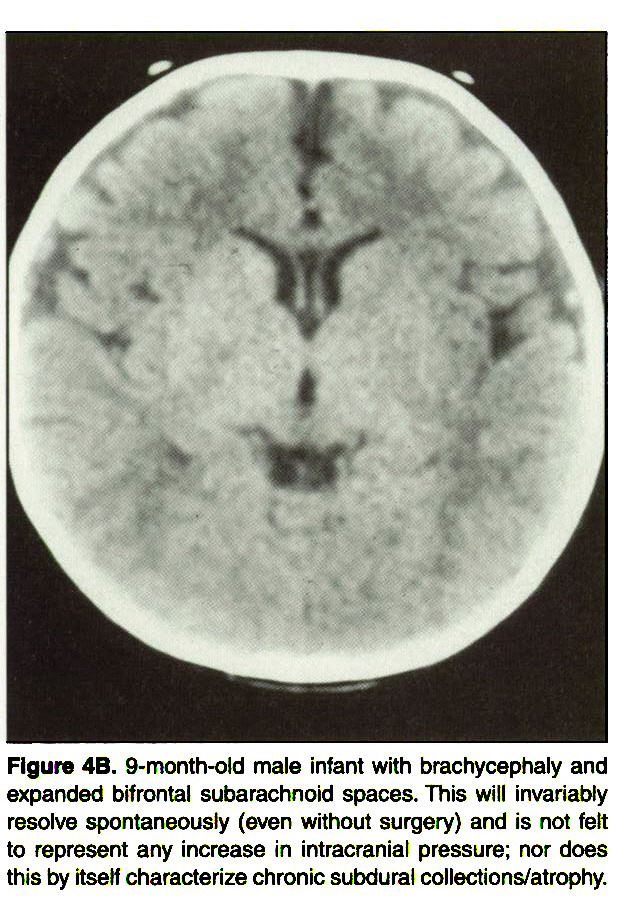 Figure 4B. 9-month-old male infant with brachycephaly and expanded bifrontal subarachnoid spaces. This will invariably resolve spontaneously (even without surgery) and is not felt to represent any increase in intracranial pressure; nor does this by itself characterize chronic subdural collections/atrophy.