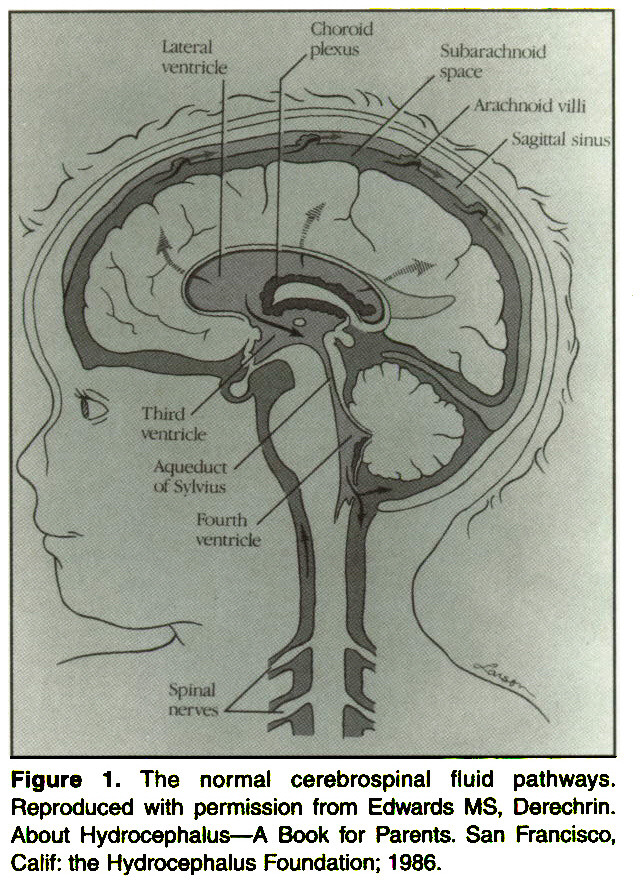 Figure 1. The normal cerebrospinal fluid pathways. Reproduced with permission from Edwards MS, Derechrin. About Hydrocephalus-A Book for Parents. San Francisco, Calif: the Hydrocephalus Foundation; 1986.