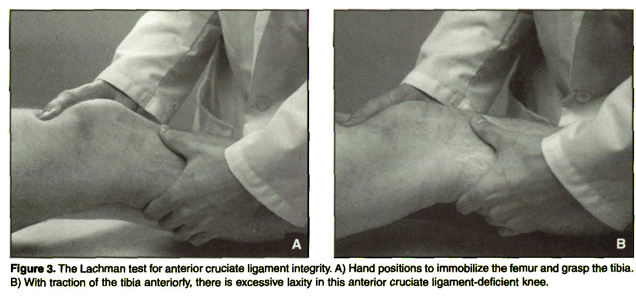 Figure 3. The Lachman test for anterior cruciate ligament integrity. A) Hand positions to immobilize the femur and grasp the tibia. B) With traction of the tibia anteriorly, there is excessive laxity in this anterior cruciate ligament-deficient knee.