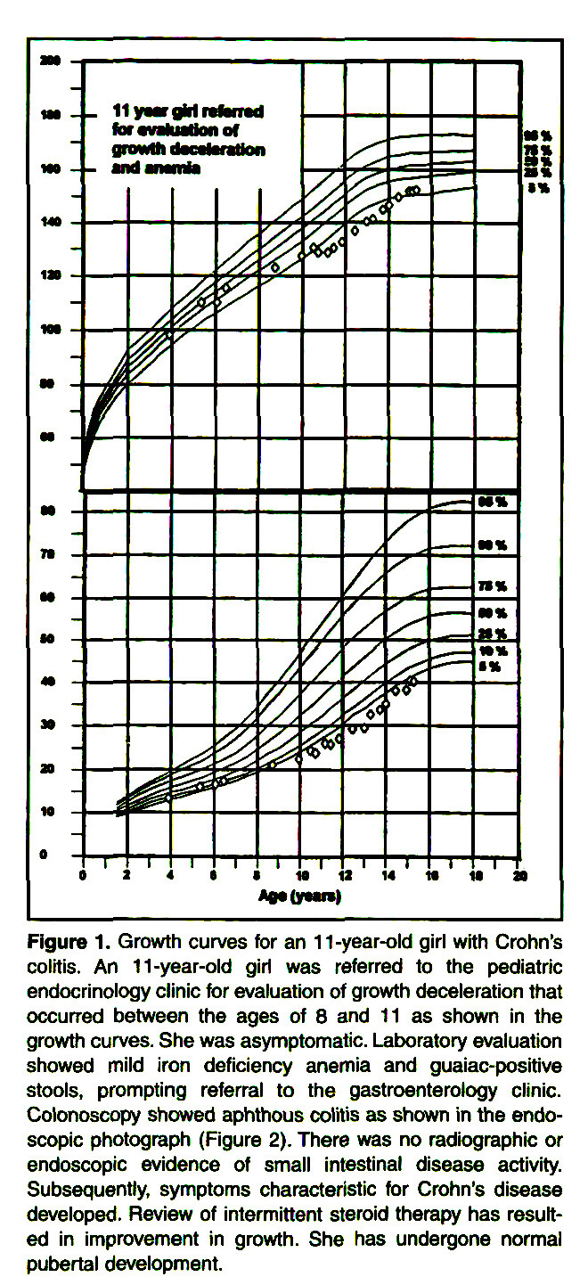 Figure 1. Growth curves for an 11 -year-old girl with Crohn's colitis. An 11 -year-old girl was referred to the pediatrie endocrinology clinic for evaluation of growth deceleration that occurred between the ages of 8 and 11 as shown in the growth curves. She was asymptomatic. Laboratory evaluation showed mild iron deficiency anemia and guaiac-positive stools, prompting referral to the gastroenterology clinic. Colonoscopy showed aphthous colitis as shown in the endoscopie photograph (Figure 2). There was no radiographie or endoscopie evidence of small intestinal disease activity. Subsequently, symptoms characteristic for Crohn's disease developed. Review of intermittent steroid therapy has resulted in improvement in growth. She has undergone normal pubertal development.