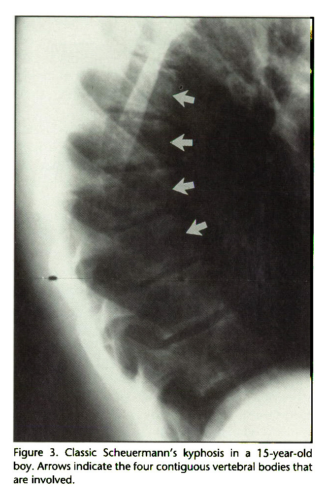 Figure 3. Classic Scheuermann's kyphosis in a 15-year-old boy. Arrows indicate the four contiguous vertebral bodies that are involved.
