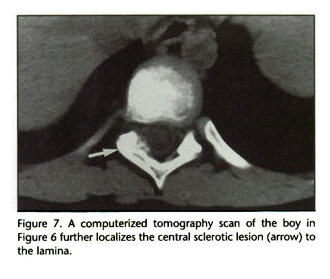 Figure 7. A computerized tomography scan of the boy in Figure 6 further localizes the central sclerotic lesion (arrow) to the lamina.