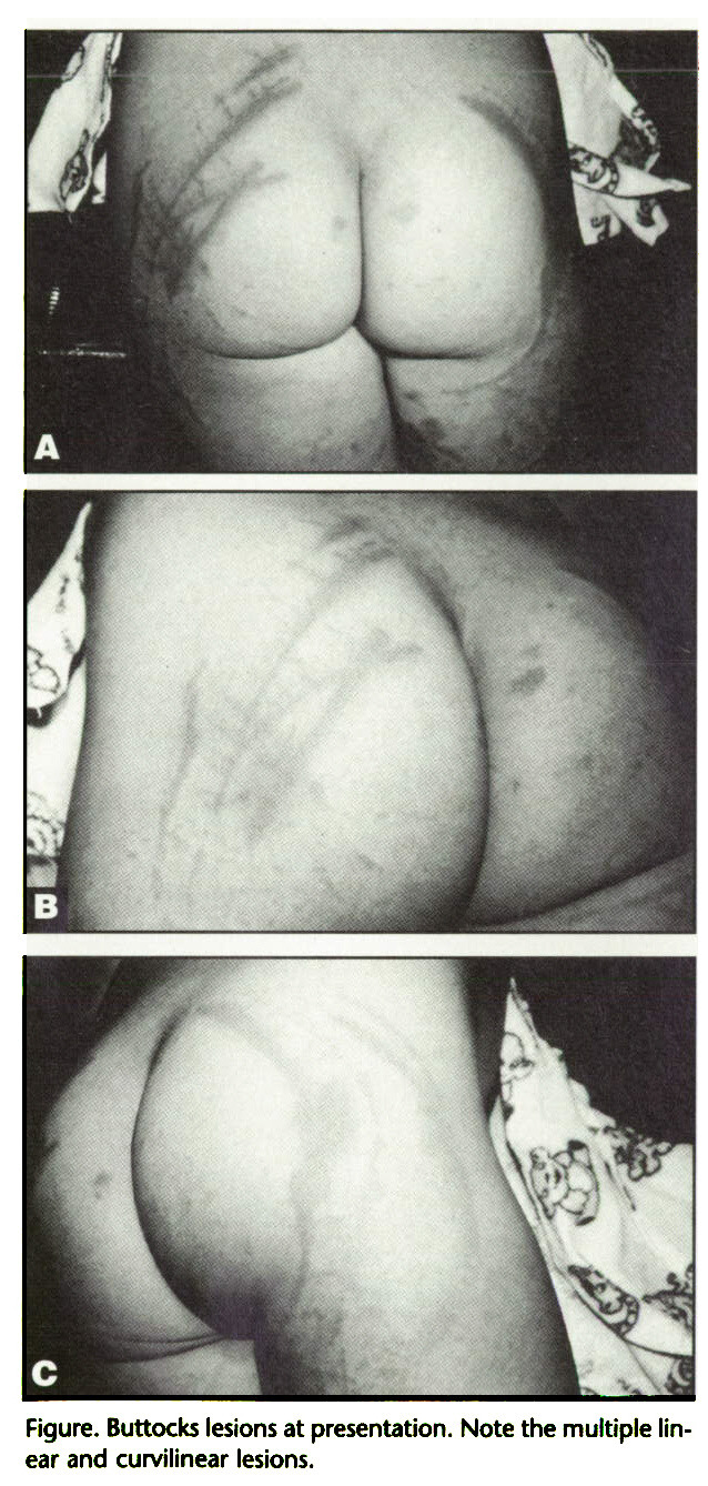 Figure. Buttocks lesions at presentation. Note the multiple linear and curvilinear lesions.