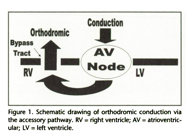 Figure 1 . Schematic drawing of orthodromic conduction via the accessory pathway. RV = right ventricle; AV = atrioventricular; LV = left ventricle.