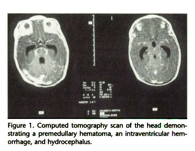 Figure 1 . Computed tomography scan of the head demonstrating a premedullary hematoma, an intraventricular hemorrhage, and hydrocephalus.