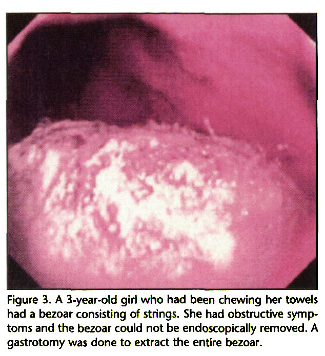 Figure 3. A 3-year-old girl who had been chewing her towels had a bezoar consisting of strings. She had obstructive symptoms and the bezoar could not be endoscopically removed. A gastrotomy was done to extract the entire bezoar.