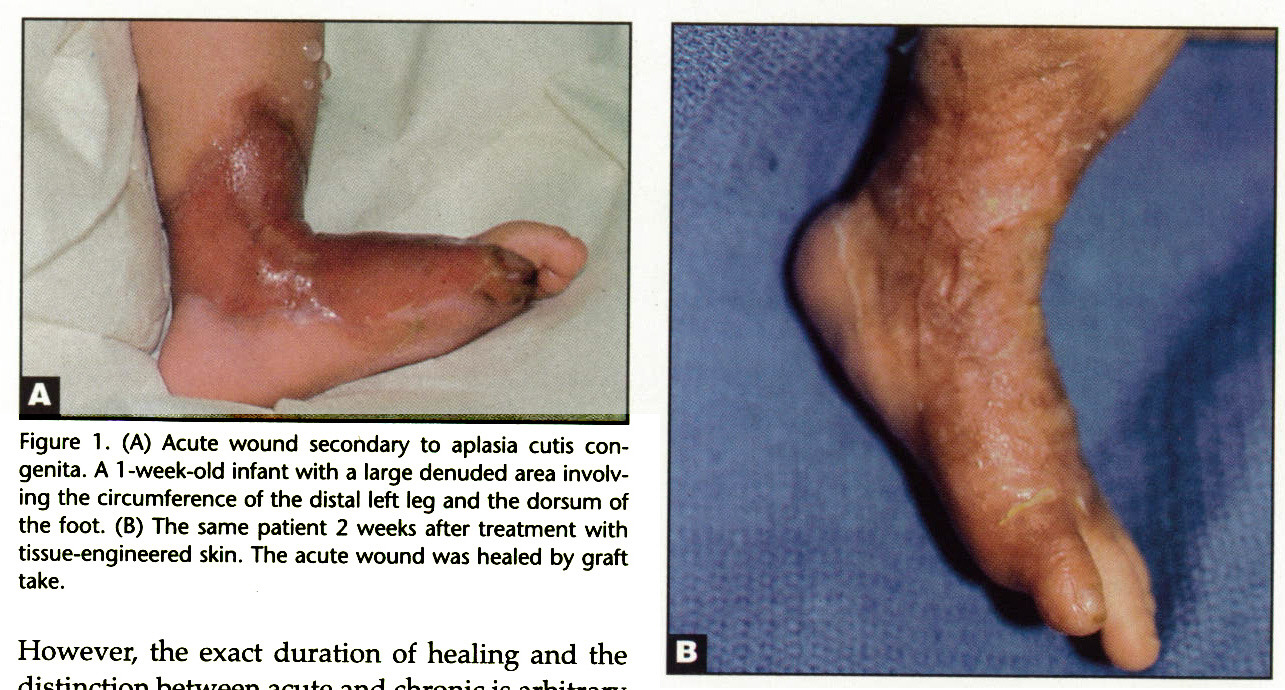 Figure 1. (A) Acute wound secondary to aplasia cutis congenita. A 1 -week-old infant with a large denuded area involving the circumference of the distal left leg and the dorsum of the foot. (B) The same patient 2 weeks after treatment with tissue-engineered skin. The acute wound was healed by graft take.