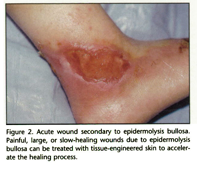 Figure 2. Acute wound secondary to epidermolysis bullosa. Painful, large, or slow-healing wounds due to epidermolysis bullosa can be treated with tissue-engineered skin to accelerate the healing process.