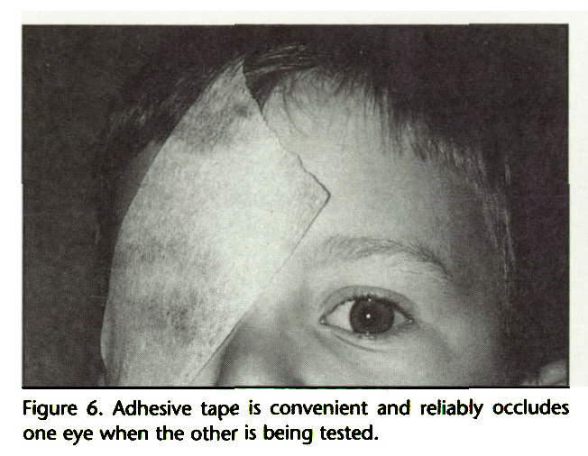 Figure 6. Adhesive tape is convenient and reliably occludes one eye when the other is being tested.