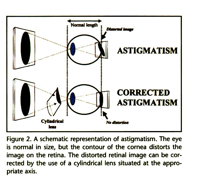 Figure 2. A schematic representation of astigmatism. The eye is normal in size, but the contour of the cornea distorts the image on the retina. The distorted retinal image can be corrected by the use of a cylindrical lens situated at the appropriate axis.