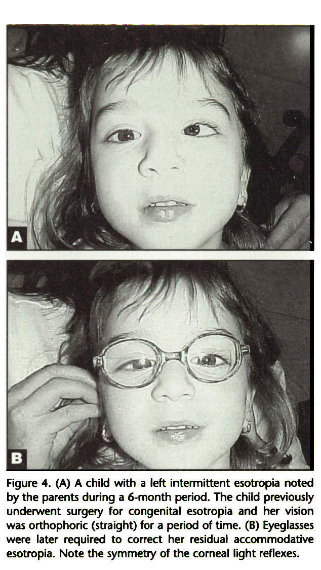 Figure 4. (A) A child with a left intermittent esotropia noted by the parents during a 6-month period. The child previously underwent surgery for congenital esotropia and her vision was Orthophorie (straight) for a period of time. (B) Eyeglasses were later required to correct her residual accommodative esotropia. Note the symmetry of the corneal light reflexes.