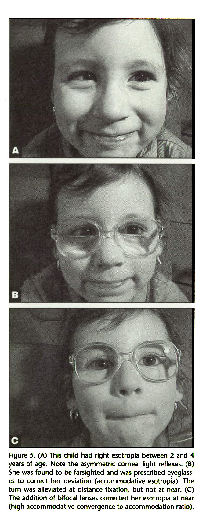 Figure 5. (A) This child had right esotropia between 2 and 4 years of age. Note the asymmetric corneal light reflexes. (B) She was found to be farsighted and was prescribed eyeglasses to correct her deviation (accommodative esotropia). The turn was alleviated at distance fixation, but not at near. (C) The addition of bifocal lenses corrected her esotropia at near (high accommodative convergence to accommodation ratio).