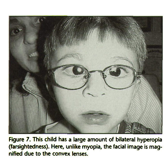 Figure 7. This child has a large amount of bilateral hyperopia (farsightedness). Here, unlike myopia, the facial image is magnified due to the convex lenses.