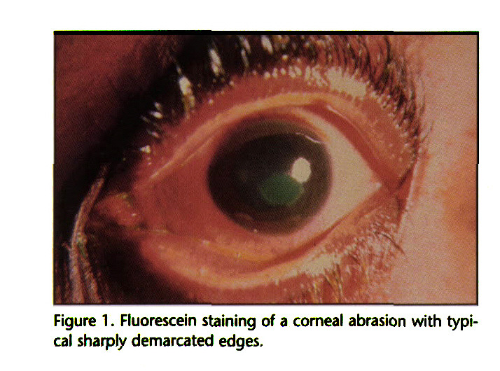 Figure 1 . Fluorescein staining of a corneal abrasion with typical sharply demarcated edges.