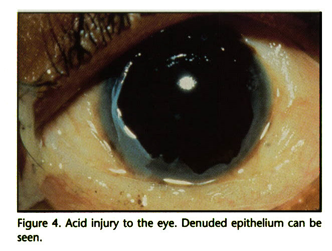 Figure 4. Acid injury to the eye. Denuded epithelium can be seen.