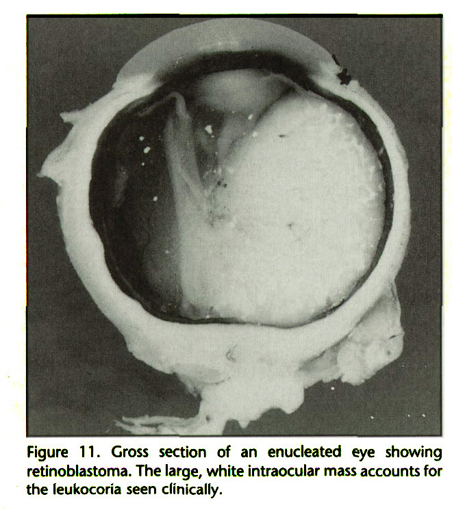 Figure 11. Gross section of an enucleated eye showing retinoblastoma. The large, white intraocular mass accounts for the leukocoria seen clinically.