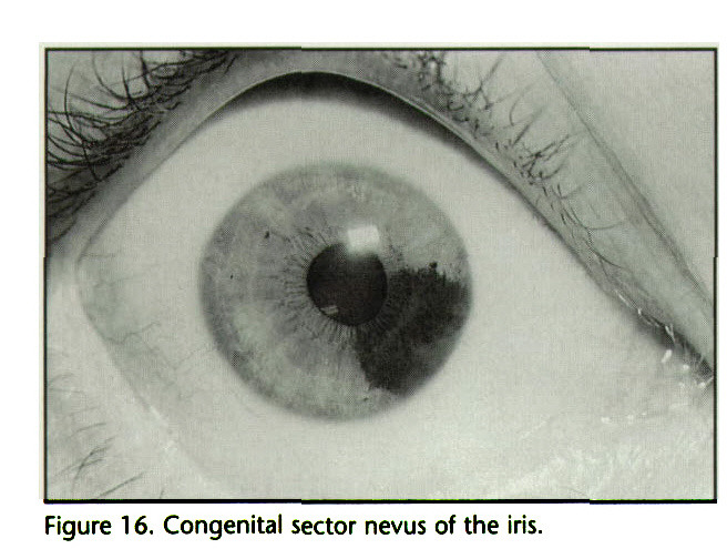 Figure 16. Congenital sector nevus of the iris.