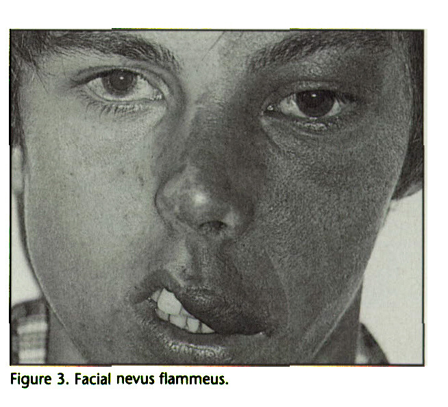 Figure 3. Facial nevus flammeus