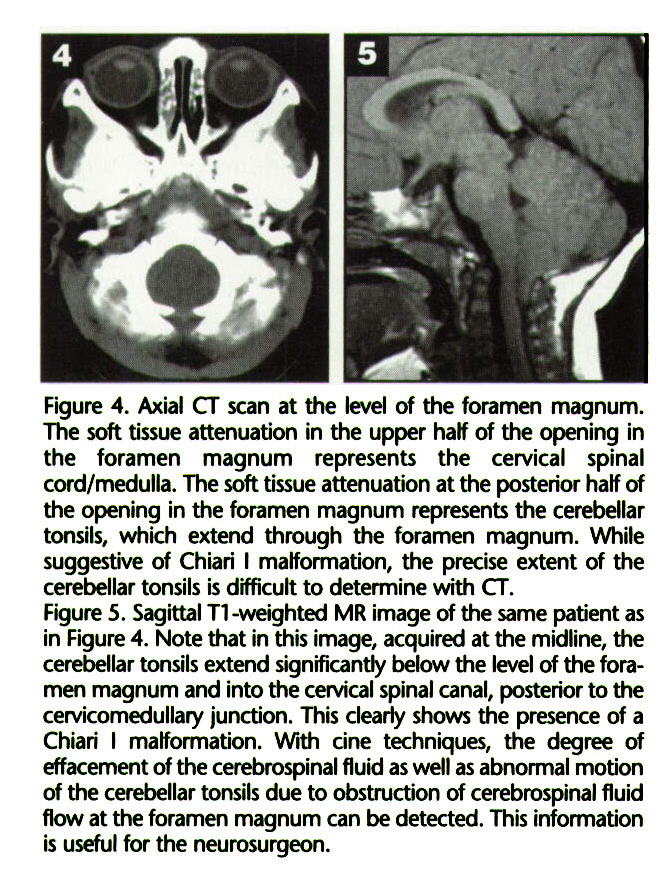Figure 4. Axial CT scan at the level of the foramen magnum. The soft tissue attenuation in the upper half of the opening in the foramen magnum represents the cervical spinal cord/medulla. The soft tissue attenuation at the posterior half of the opening in the foramen magnum represents the cerebellar tonsils, which extend through the foramen magnum. While suggestive of Chiari I malformation, the precise extent of the cerebellar tonsils is difficult to determine with CT.Figure 5. Sagittal T1 -weighted MR image of the same patient as in Figure 4. Note that in this image, acquired at the midline, the cerebellar tonsils extend significantly below the level of the foramen magnum and into the cervical spinal canal, posterior to the cervicomedullary junction. This clearly shows the presence of a Chiari I malformation. With cine techniques, the degree of effacement of the cerebrospinal fluid as well as abnormal motion of the cerebellar tonsils due to obstruction of cerebrospinal fluid flow at the foramen magnum can be detected. This information is useful for the neurosurgeon.