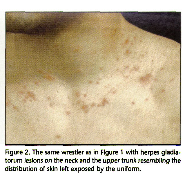 Figure 2. The same wrestler as in Figure 1 with herpes giadiatorum lesions on the neck and the upper trunk resembling the distribution of skin left exposed by the uniform.