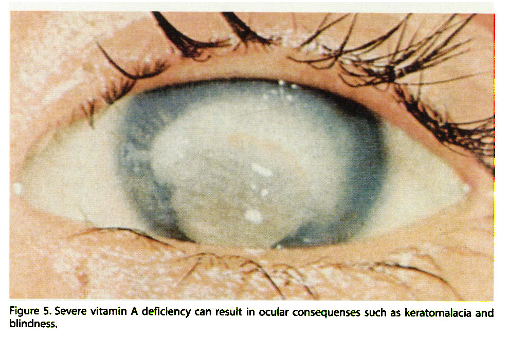Figure 5. Severe vitamin A deficiency can result in ocular consequenses such as keratomalacia and blindness.