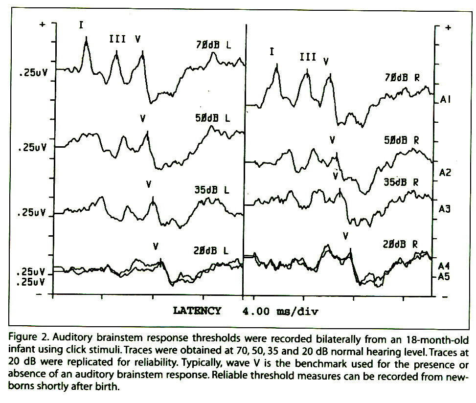 Figure 2. Auditory brainstem response thresholds were recorded bilaterally from an 18-month-old infant using click stimuli.Traces were obtained at 70, 50, 35 and 20 dB normal hearing level. Traces at 20 dB were replicated for reliability. Typically, wave V is the benchmark used for the presence or absence of an auditory brainstem response. Reliable threshold measures can be recorded from newborns shortly after birth.