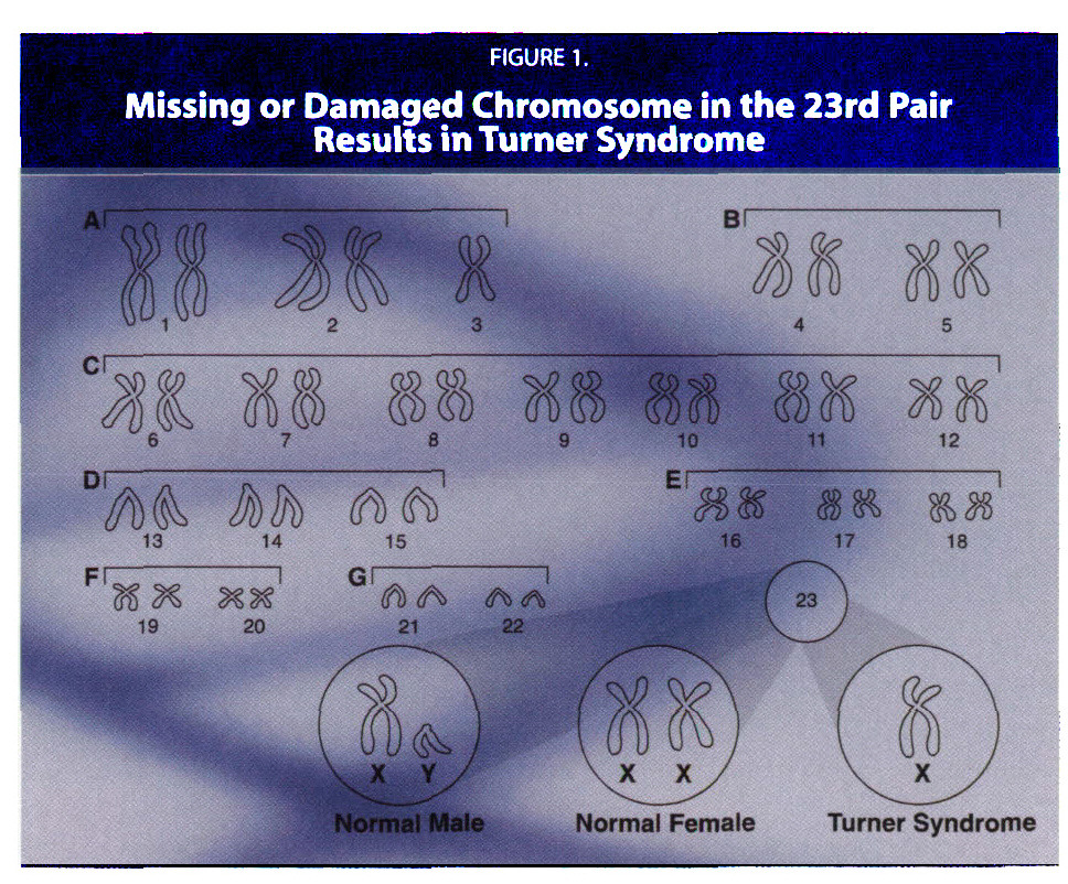 FIGURE 1.Missing or Damaged Chromosome in the 23rd Pair Results in Turner Syndrome