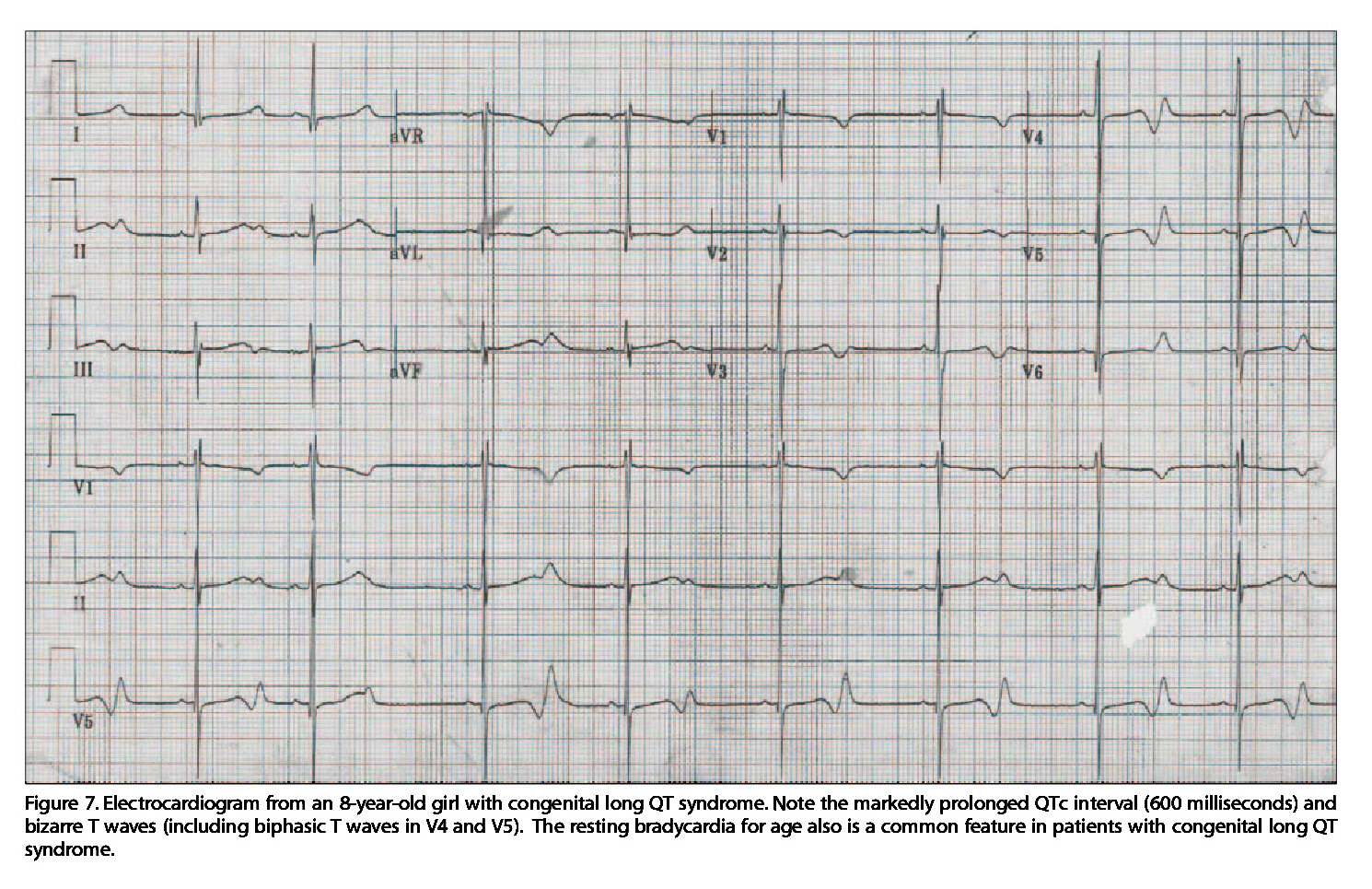 Figure 7. Electrocardiogram from an 8-year-old giri with congenital long QT syndrome. Note the markedly prolonged QTc interval (600 milliseconds) and bizarre T waves (including biphasic T waves in V4 and V5). The resting bradycardia for age also is a common feature in patients with congenital long QT syndrome.