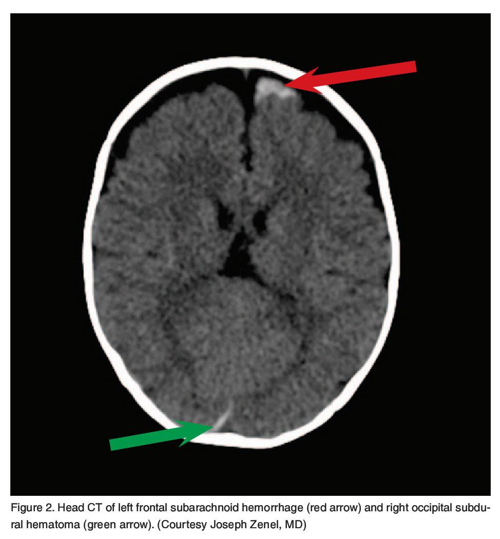 Figure 2. Head CT of left frontal subarachnoid hemorrhage (red arrow) and right occipital subdural hematoma (green arrow). (Courtesy Joseph Zenel, MD)