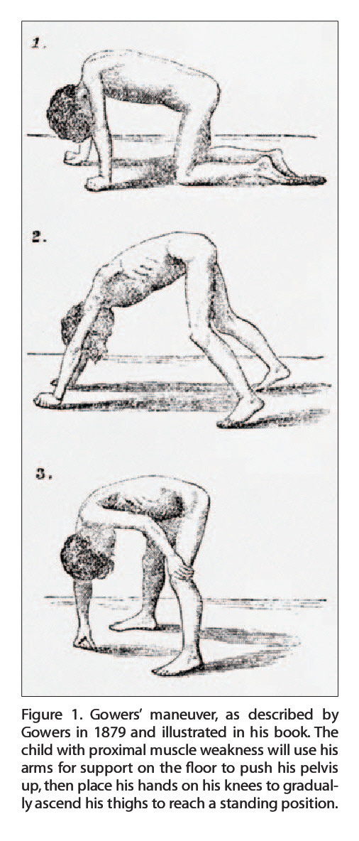 Figure 1. Gowers' maneuver, as described by Gowers in 1879 and illustrated in his book The child with proximal muscle weakness will use his arms for support on the floor to push his pelvis up, then place his hands on his knees to gradually ascend his thighs to reach a standing position.