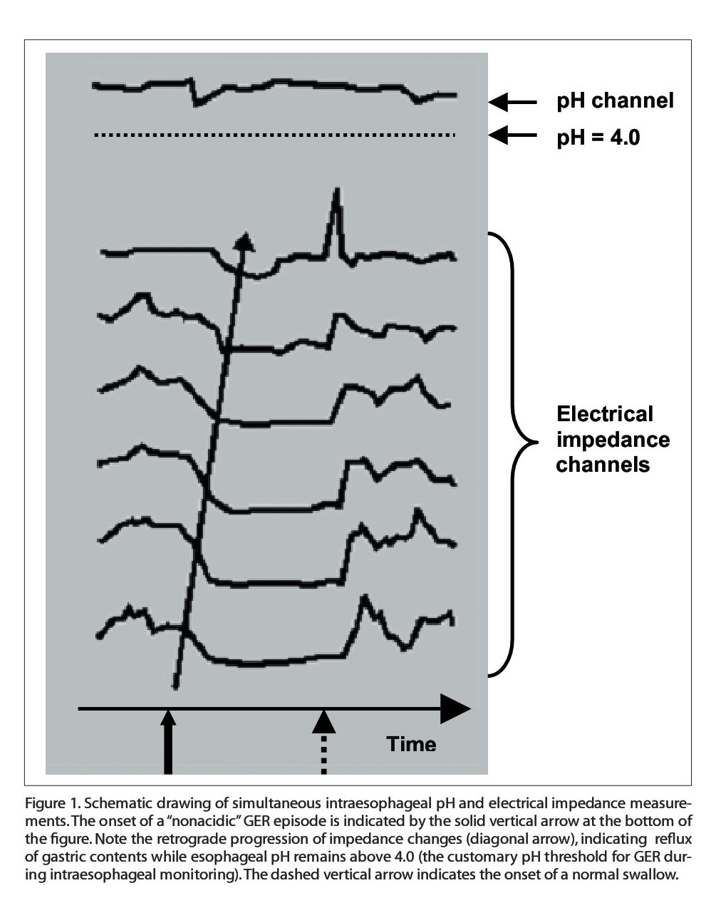 """Figure 1. Schematic drawing of simultaneous intraesophageal pH and electrical impedance measurements. The onset of a """"nonacid ic"""" GER episode is indicated by the solid vertical arrow at the bottom of the figure. Note the retrograde progression of impedance changes (diagonal arrow), indicating reflux of gastric contents while esophageal pH remains above 4.0 (the customary pH threshold for GER during intraesophageal monitori ng).The dashed vertical arrow indicates the onset of a normal swallow."""