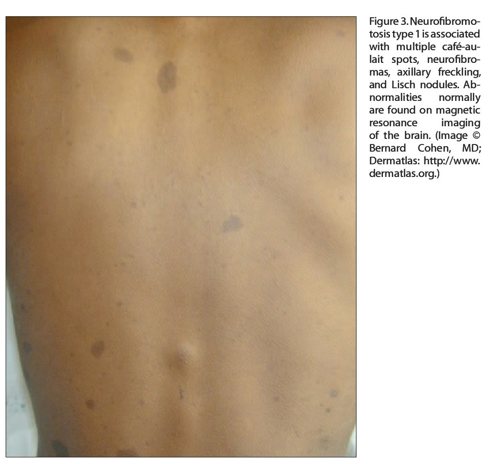 Figure 3. Neurofibromotosis type 1 is associated with multiple café-aulait spots, neurofibromas, axillary freckling, and Lisch nodules. Abnormalities normally are found on magnetic resonance imaging of the brain. (Image © Bernard Cohen, MD; Dermatlas: http://www. dermatlas.org.)