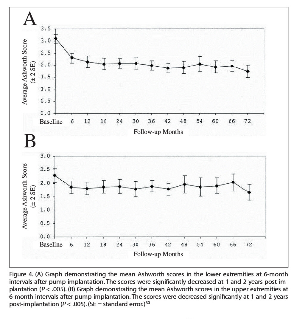 Figure 4. (A) Graph demonstrating the mean Ashworth scores in the lower extremities at 6-month intervals after pump implantation. The scores were significantly decreased at 1 and 2 years post-implantation (P < .005). (B) Graph demonstrating the mean Ashworth scores in the upper extremities at 6-month intervals after pump implantation. The scores were decreased significantly at 1 and 2 years post-implantation (P < .005). (SE = standard error.)30