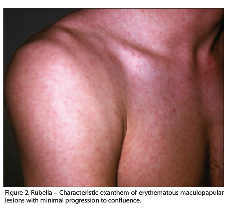 Figure 2. Rubella - Characteristic exanthem of erythematous maculopapular lesions with minimal progression to confluence.