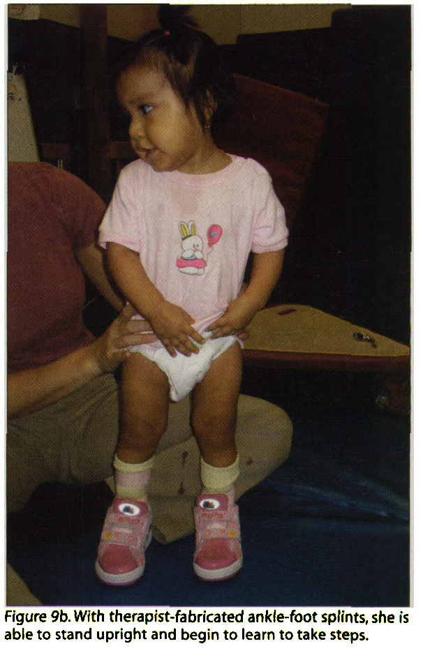 Figure 9b. With therapist-fabricated ankle-foot splints, she is able to stand upright and begin to learn to take steps.