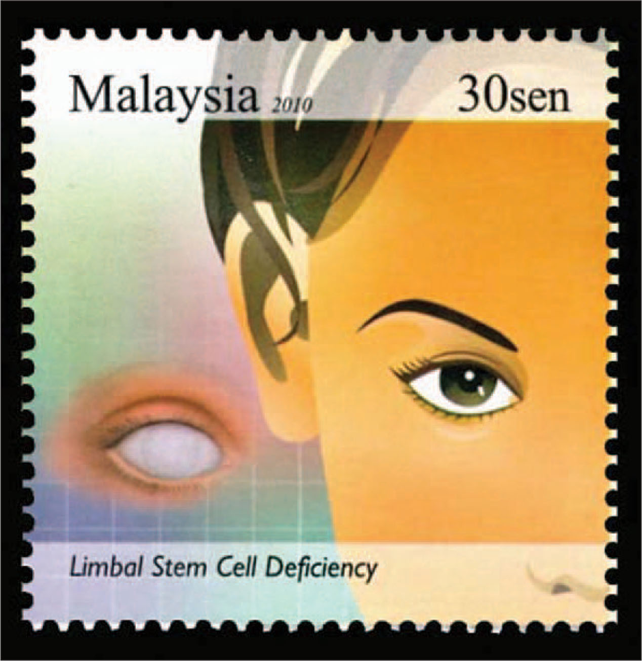 The Stamp from Malaysia Showing a Right Eye Was Issued to Emphasize Treatment of Limbal Stem Cell Deficiency.
