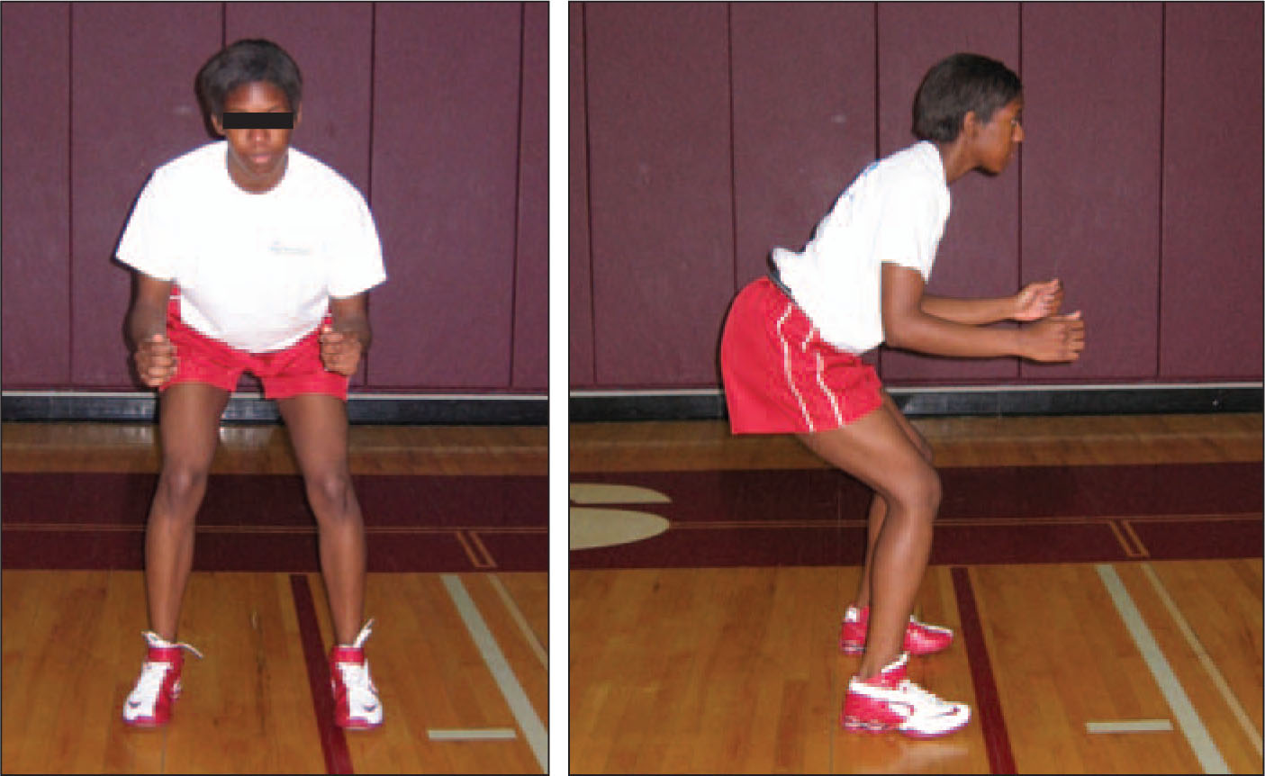 Athletic Position, Which Is Believed to Reduce the Risk of ACL Injury. A. Frontal View (left). Athlete Has More Hip Flexion. Knees Are Aligned with the Hips. Weight Is Evenly Distributed Across Both Feet. B. Lateral View (right). Athlete Is not Leaning Forward, Hips Are Posterior with Hamstrings Engaged. Knees Do not Extend over Toes.