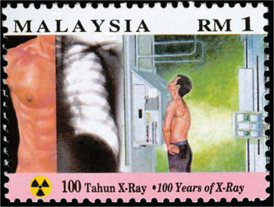 """The Malaysian Stamp Honors """"100 Years of X-Ray,"""" Showing an X-Ray in Progress on the Right and Half of a Chest X-Ray on the Left."""