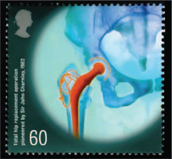 This 60-Penny Stamp Shows a Total Hip Replacement in Recognition of the Research of Sir John Charnley (1911–1982) to Achieve the First Successful Procedure of This Kind in 1962.