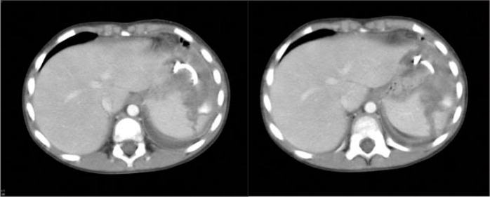 A–B. CT of the abdomen demonstrates large splenic fracture after abscess drainage with pigtail catheter. Source: Edelson K. Reprinted with permission.