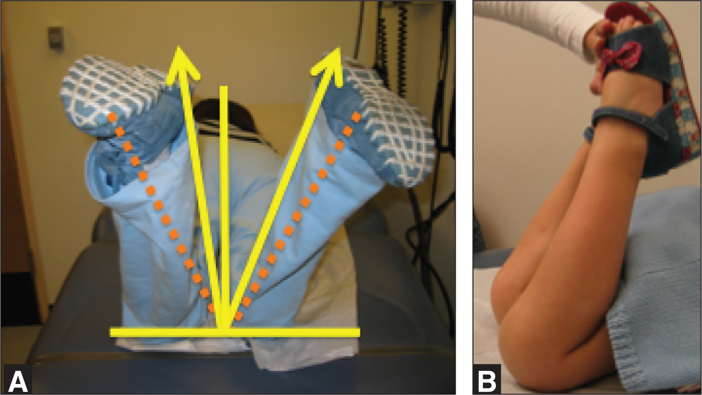 Assessing the hip and knee joints range of motion while prone allows the examiner to compare sides for asymmetrical findings. (A) This patient's hip internal rotation (arrows) is worse on the left versus the right from midline (solid lines). The dashed line approximates normal internal rotation. (B) This patient is unable to flex the right knee as far as the left.