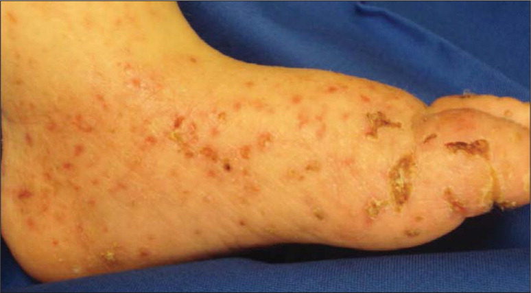 Superinfected atopic dermatitis. Source: Lane L, Dyer J. Reprinted with permission.