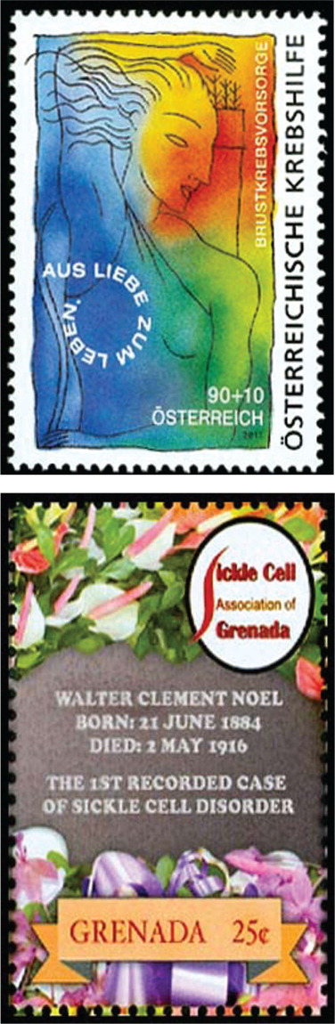 Top, 2011 breast cancer stamp from Austria (an almost exact duplicate of the more familiar US stamp). Bottom, Stamp from Grenada honors Walter Clement Noel, DDS (1884–1916), the first individual diagnosed with sickle cell disease.All images courtesy of Stanford T. Shulman, MD. Reprinted with permission.