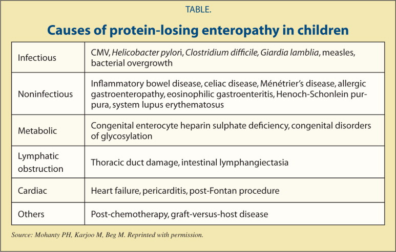 Causes of protein-losing enteropathy in children