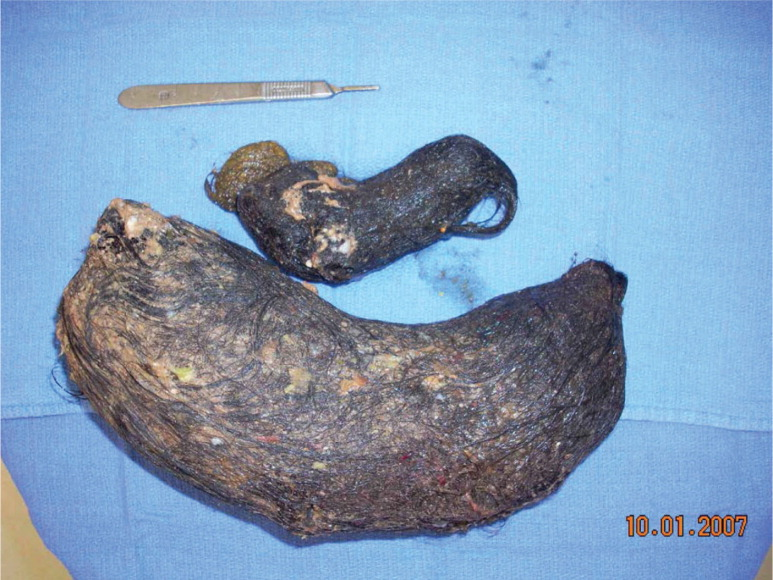 Trichobezoar after removal.Photo courtesy of Donald B. Shaul, MD. Reprinted with permission.