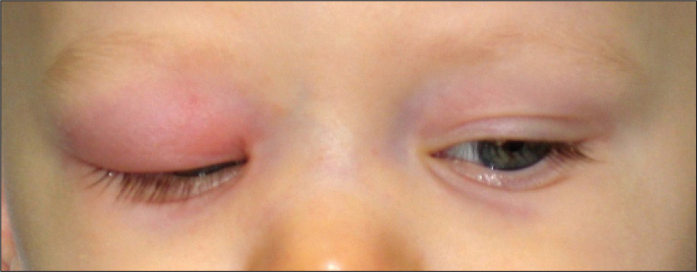 An 8-month-old white boy with an upper respiratory infection for the past week has now developed moderate swelling and redness of his right upper eyelid in the last 24 hours, along with a fever of 102.4°F, crankiness, and ear tugging.Images courtesy of Stan L. Block, MD, FAAP.