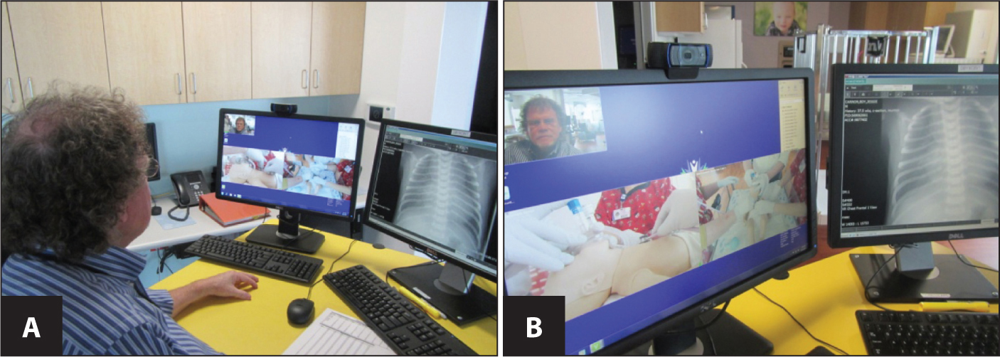 (A) Neonatologist at referral hospital viewing camera views and audio. (B) Views on referral hospital monitors.