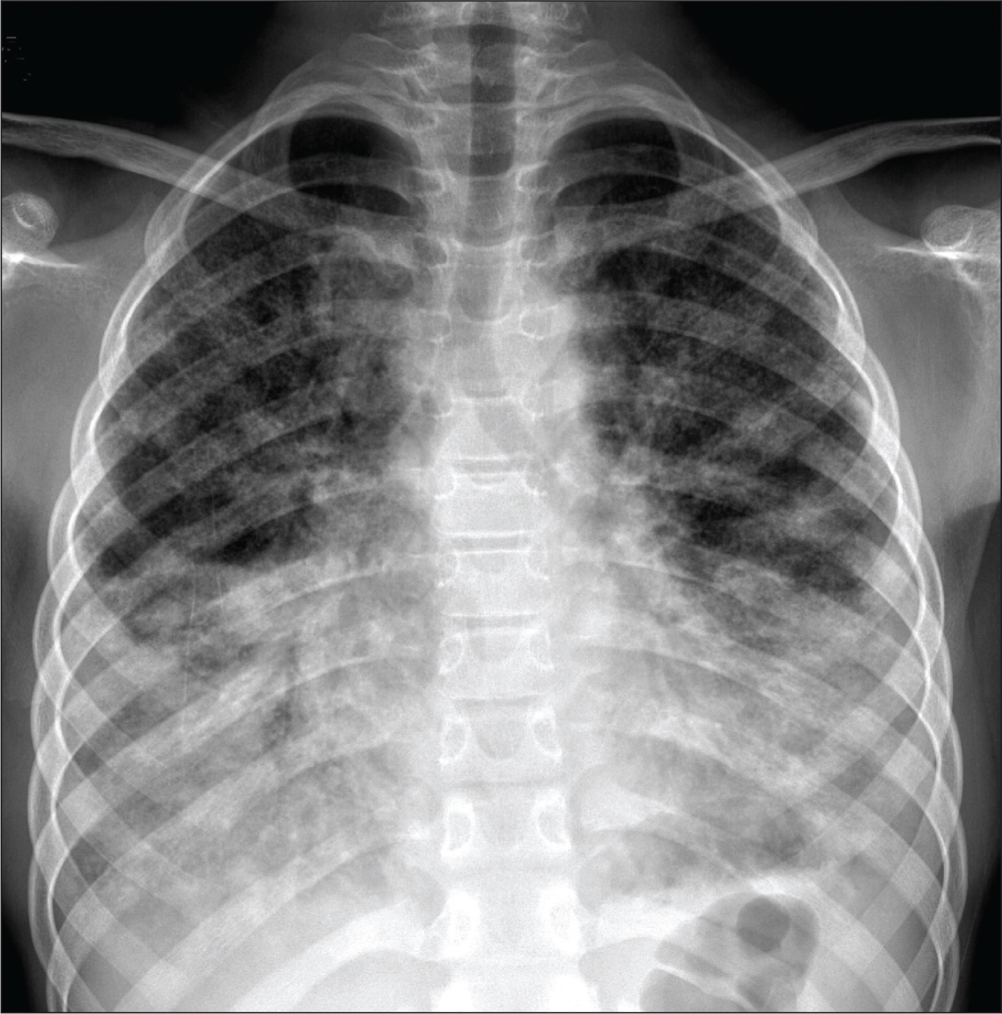 Chest X-ray of the patient at the time of initial presentation. Note the bibasilar opacities and diffuse infiltrates in upper zones.Images courtesy of Lokesh Guglani, MD, FAAP.